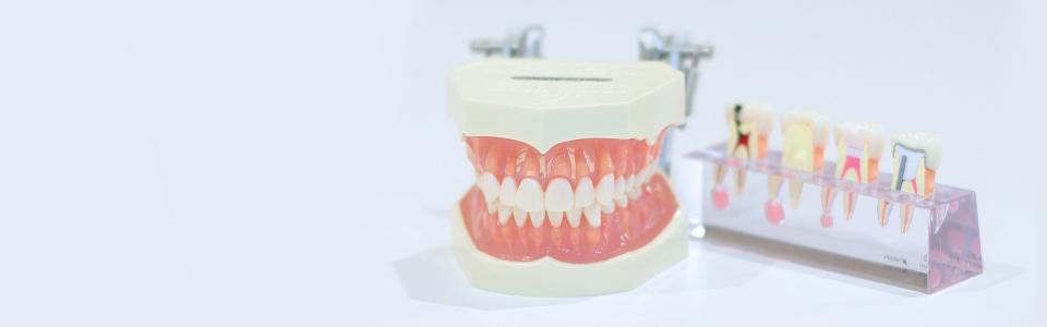 よくあるご質問 歯科医院にある歯の模型