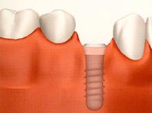 インプラントの埋入と骨の結合