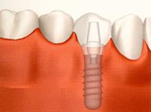 新しい歯をインプラントへ固定する